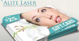 alite-laser-1-6936242-original-jpg